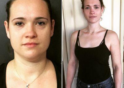Foto voor en na
